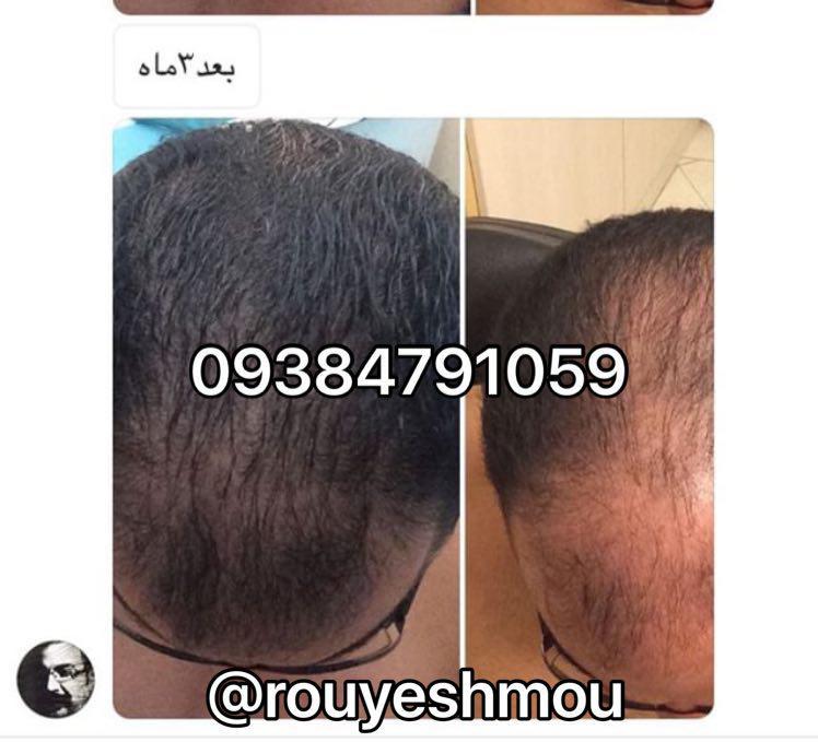 ترمیم مو چیست؟