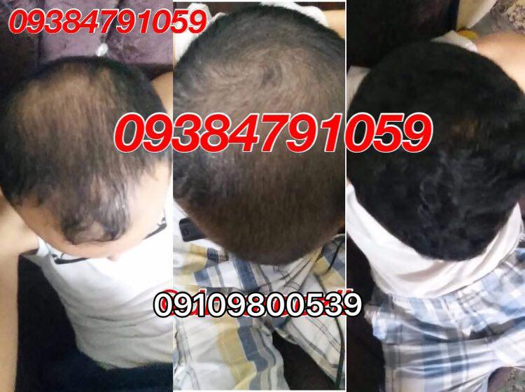 علت ریزش مو در کودکان