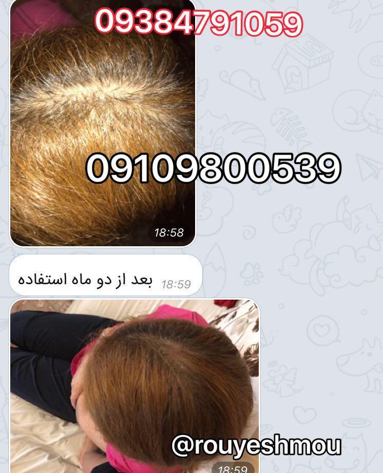 معجزه برای بلند شدن مو