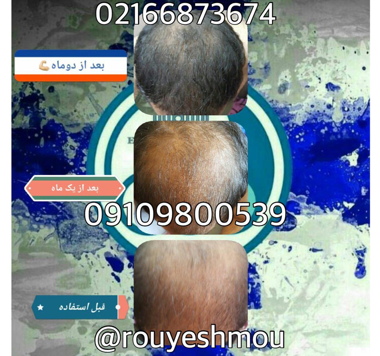 درمان ریزش مو با آب پیاز وعسل