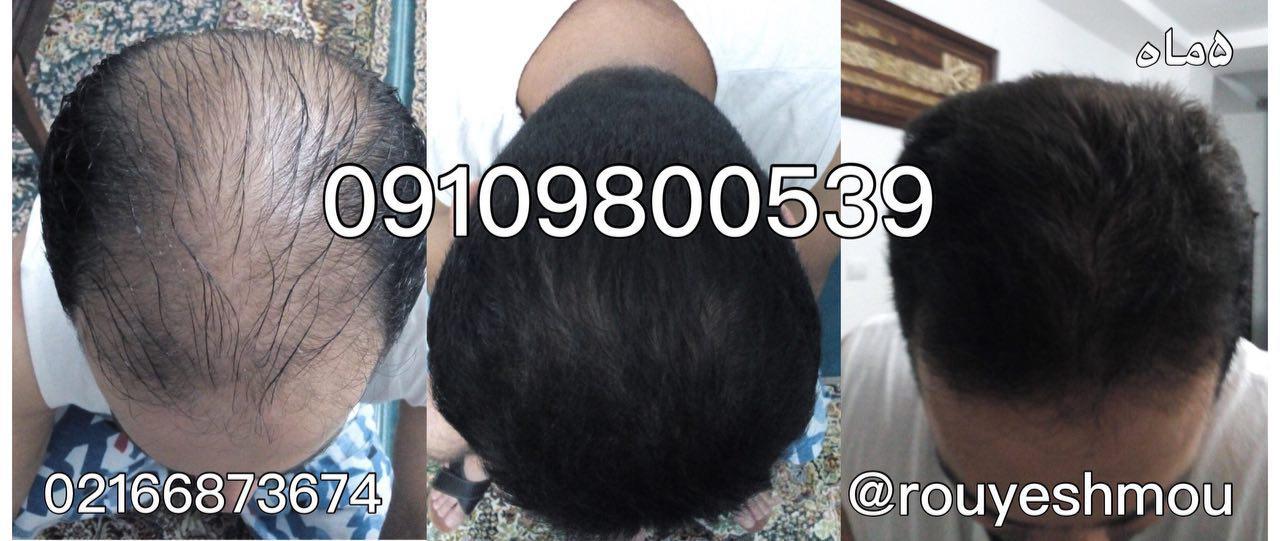در نمونه های موضعی، بیوتین اغلب با دیگر عوامل موثر در کاهش ریزش مو مانند روی ترکیب می شود.