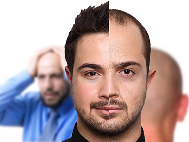 آگاهی از عوامل ریزش مو