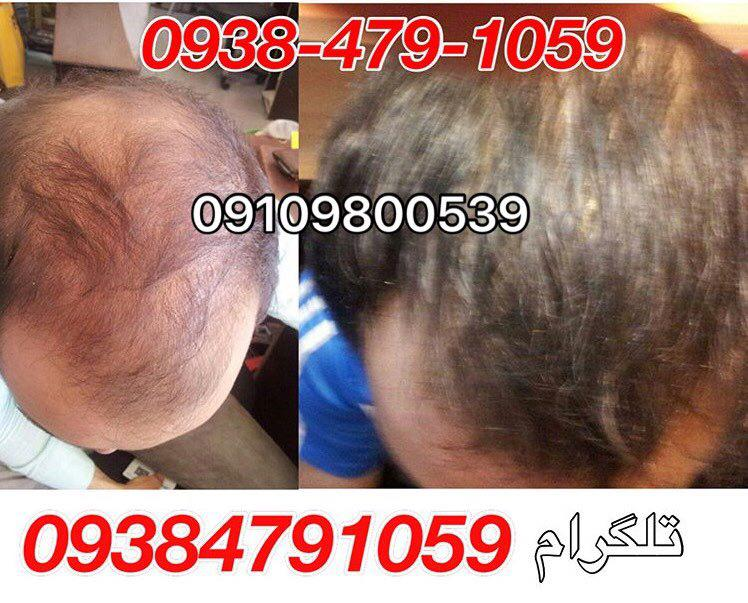 تاثیر معجزه آسای شامپو و نحوه ی آب رسانی در افزایش رشد موی سر