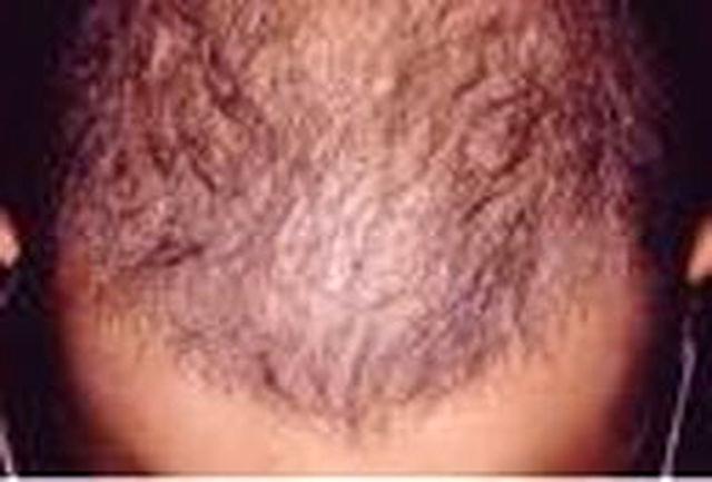بهترین راه برای رشد مجدد مو