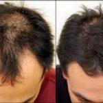 رشد دوباره موی سر ممکن شد