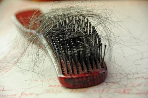 اگر به ریزش موی شدید مبتلا هستید بخوانید