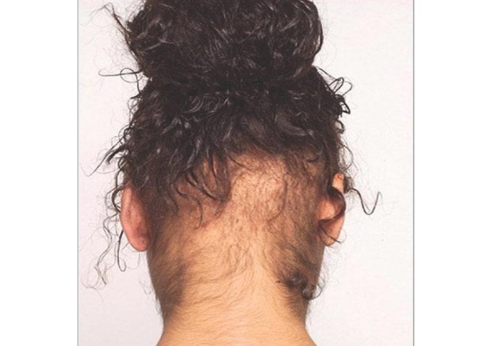 ریزش مو و نگاهی به درمان های تاییدشده