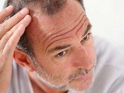 آیا کندن موهای سفید باعث زیاد شدنشان می شود