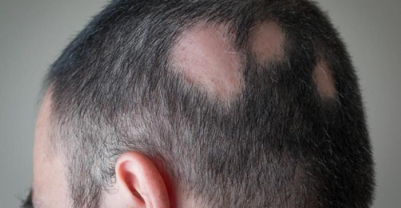 Image result for بیماری ها وریزش مو