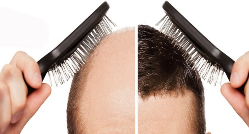 Image result for درمان ریزش مو