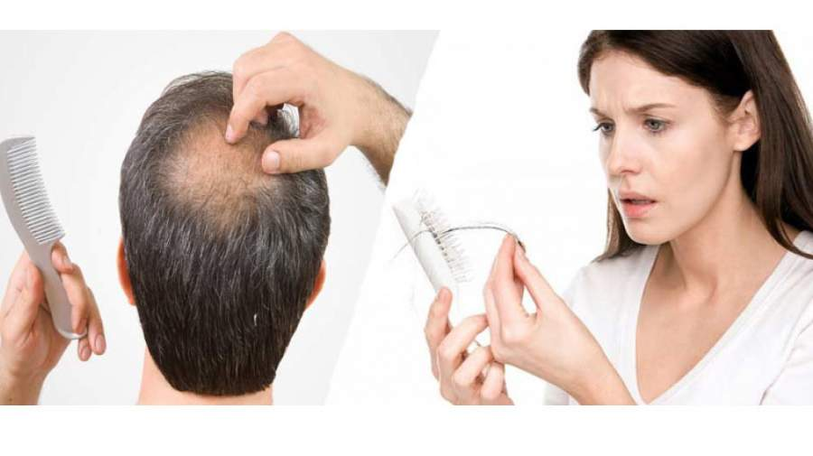 10 علت ریزش مو