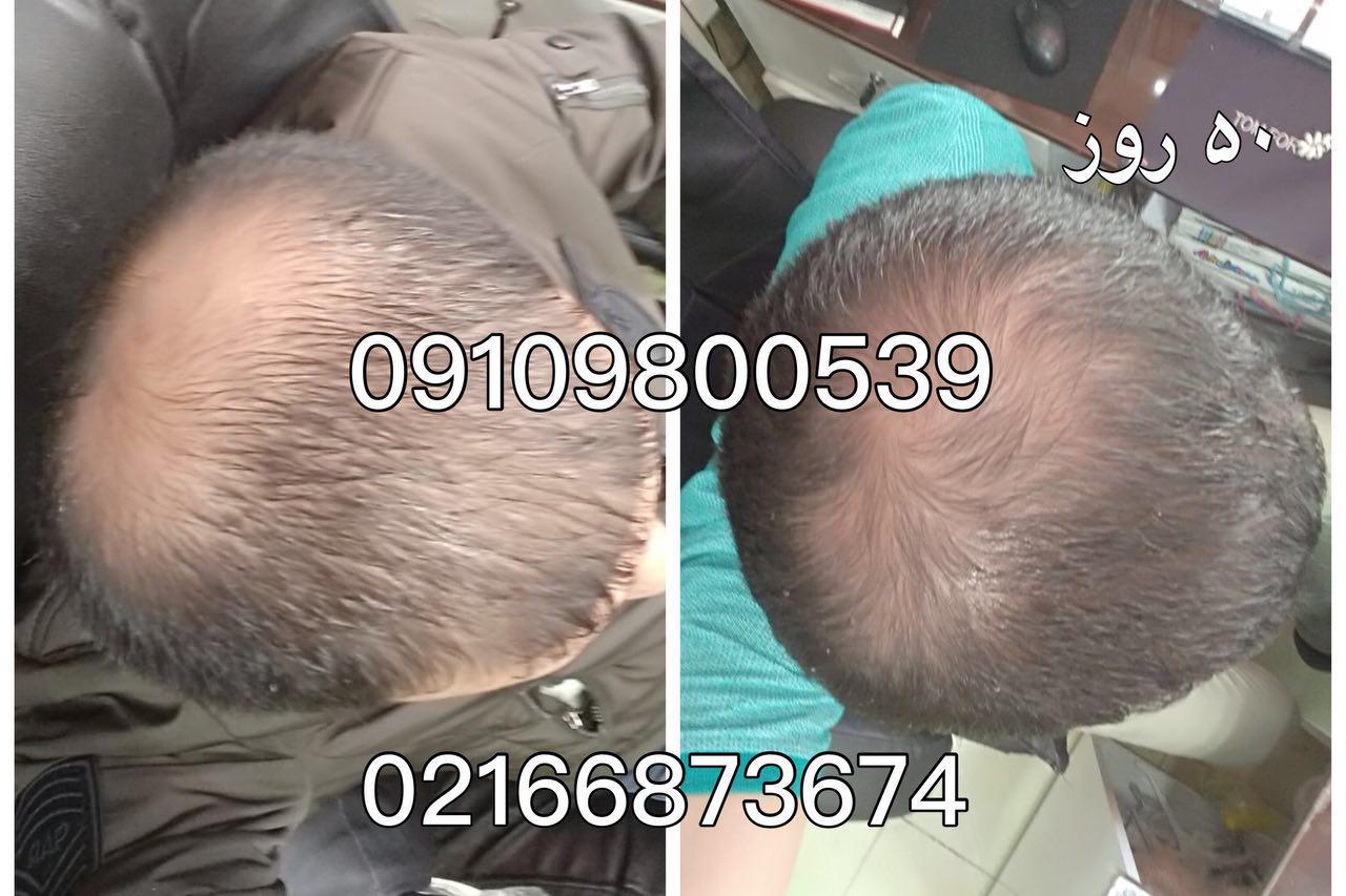 علل ریزش مو و چرخه رشد مو