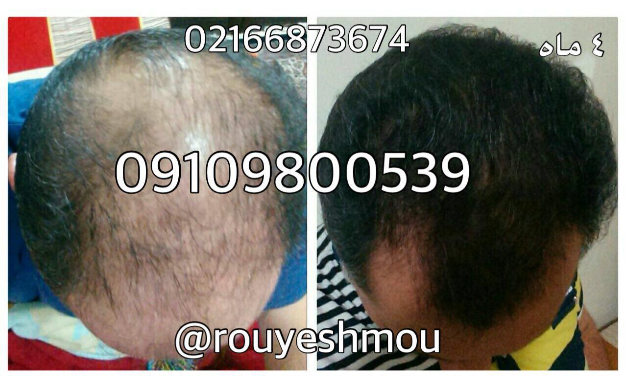 رشد موی خود را افزایش دهید