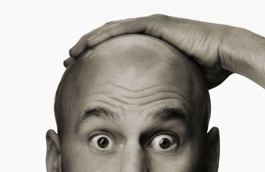 درمان عجیب برای جلوگیری از ریزش مو