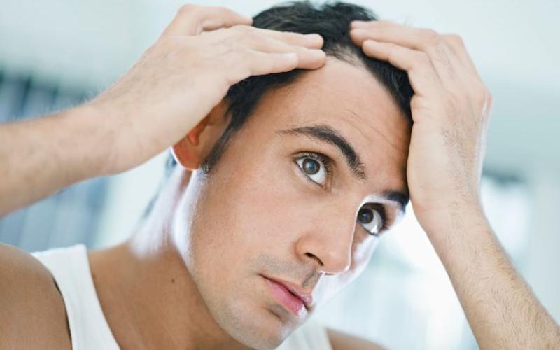 تعداد طبیعی ریزش مو در روز چندتاست