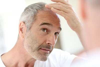 فقط پیری مو را سفید نمی کند